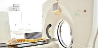 Tomografia głowy