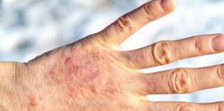 Egzema - skuteczne metody łagodzenia objawów