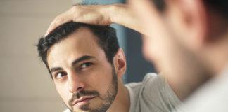 wypadanie włosów problem trychologiczny