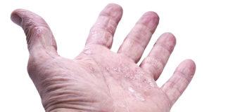 Wysokiej jakości kosmetyki do skóry atopowej