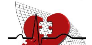 Niedotlenienie serca